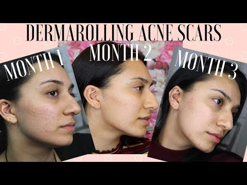 Derma Roller Review with Before and After Pics! - YouTube
