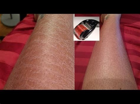 My Derma Roller review And results HAPPY NEW YEAR 2014